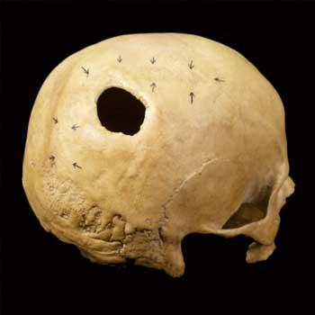 Paleopatologia